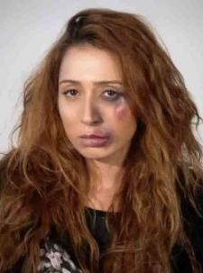 Uno delle immagini del video http://lanuovasardegna.gelocal.it/sassari/cronaca/2013/06/17/news/no-al-femminicidio-donne-e-visi-sfigurati-per-lo-spot-denuncia-1.7273975